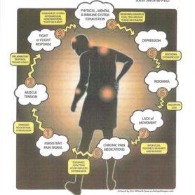 Chronic-Pain-Syndrome-J-Jerome
